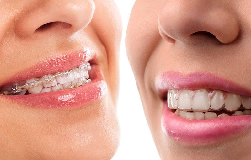 Orthodontics & Invisalign